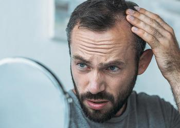 تعرف على اخر ما توصل اليه العلماء لمكافحة تساقط الشعر