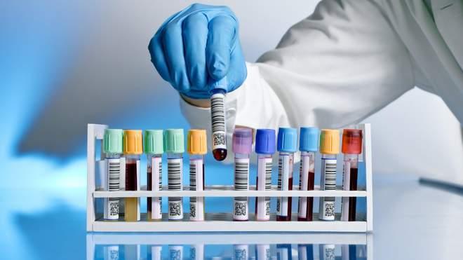 هل تجلط الدم أحد الآثار الجانبية للقاح فايزر